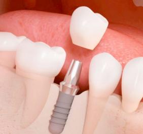 Implantes dentales B...