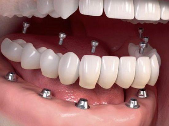 Implantes dentales Bogota